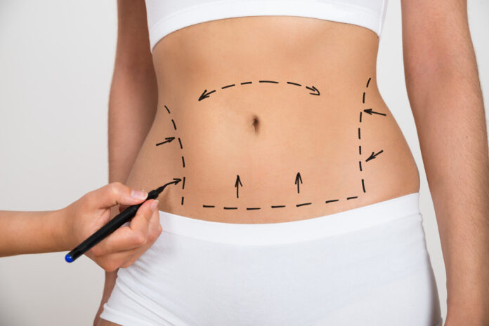 best clinic for lipo